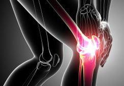 «Нужна ли помощь вашим коленям?» — онлайн тест