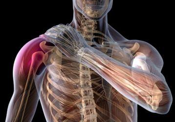 Плексит плечевого сустава: симптомы, лечение, диагностика