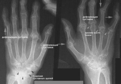 Симптомы и лечение основных болезней суставов рук: список распространенных