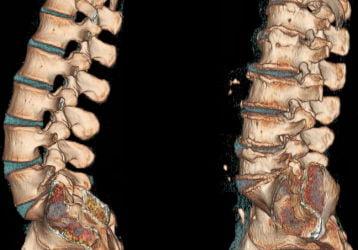 Массаж при остеохондрозе поясничного отдела позвоночника: польза, вред и правила выполнения