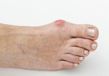 Болит косточка на ноге около большого пальца: лечение, причины и симптомы заболевания, как лечить недуг
