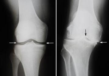 Замена коленного сустава в Москве и Петербурге: клиники и цены