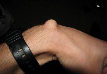 Гигрома запястья: лечение без операции и хирургическое вмешательство