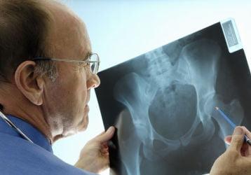 Рентгенография ТБС: особенности проведения, диагностические возможности и расшифровка