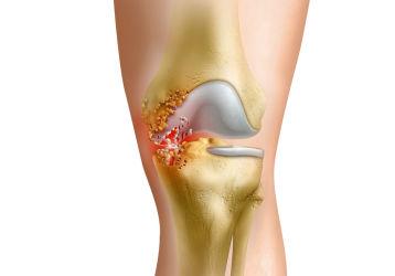Как лечить инфекционный артрит коленного сустава: признаки болезни, схемы лечения