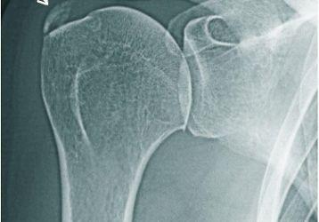 Причины, симптомы и лечение плечелопаточного периартрита