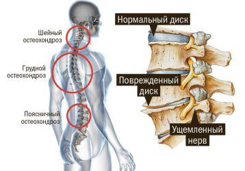 Массаж при остеохондрозе: польза и основные техники