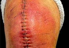 Боли после эндопротезирования коленного сустава — стоит ли паниковать?