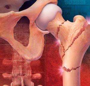 Оценка риска остеопороза у женщин