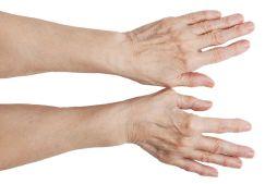 Причины появления шишек на пальцах рук, методы лечения