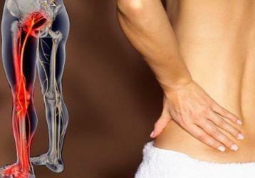 Почему боль в спине отдает в ногу: причины, лечение, что делать когда болит спина