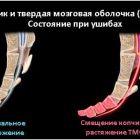 Основные причины смещения копчика, методы диагностики и лечения