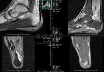 Визуализирующие возможности МРТ голеностопного сустава и стопы