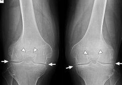 Артроз коленного сустава: лечение народными средствами, лучшие рецепты