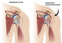 Лечение, симптомы и причины периартрита плечевого сустава