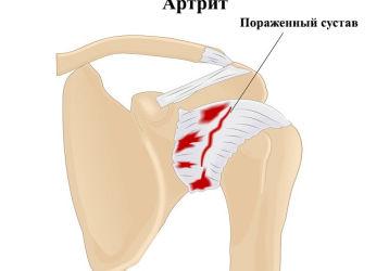 Артрит плечевого сустава (плеча): причины, симптомы, лечение