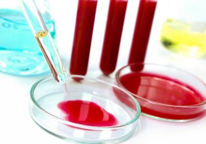 Какие анализы необходимы при артрите: виды и методы лабораторной диагностики