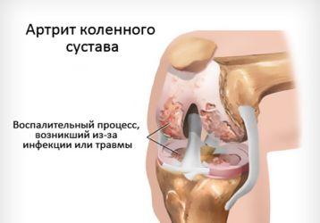 Артрит коленного сустава 1 и 2 степени: признаки и симптомы, способы лечения