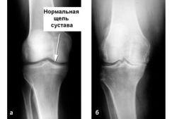 Боль в коленном суставе: причины, лечение, почему болят колени, что с этим делать, как и чем их лечить