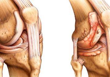 Чем отличается артрит от артроза коленного сустава: анализ признаков болезней