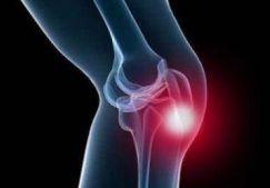 Боль над коленной чашечкой