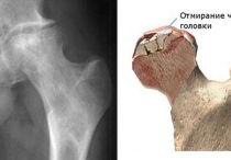Асептический некроз головки бедренной кости: причины, симптомы, лечение