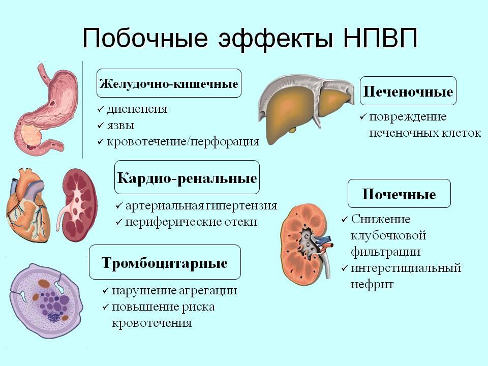 Список противовоспалительных препаратов для лечения суставов