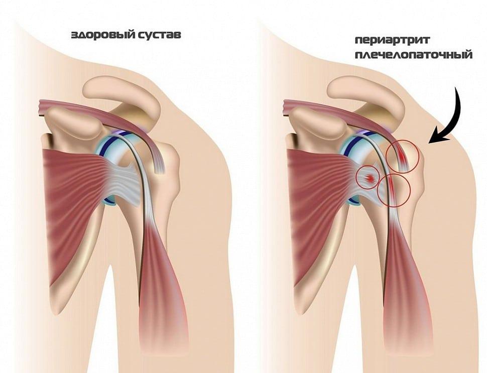 Периартрит плечевого сустава – лечение и симптомы