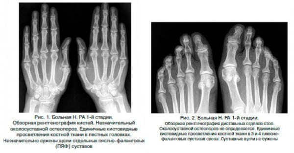 Ревматоидный артрит - стадии причины симптомы лечение профилактика