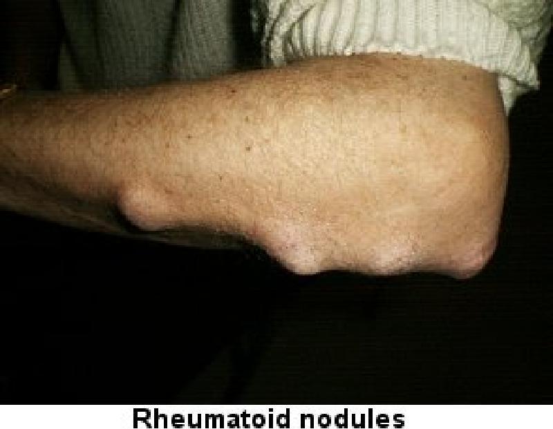 Ревматоидный артрит симптомы лечение и диагностика у взрослых