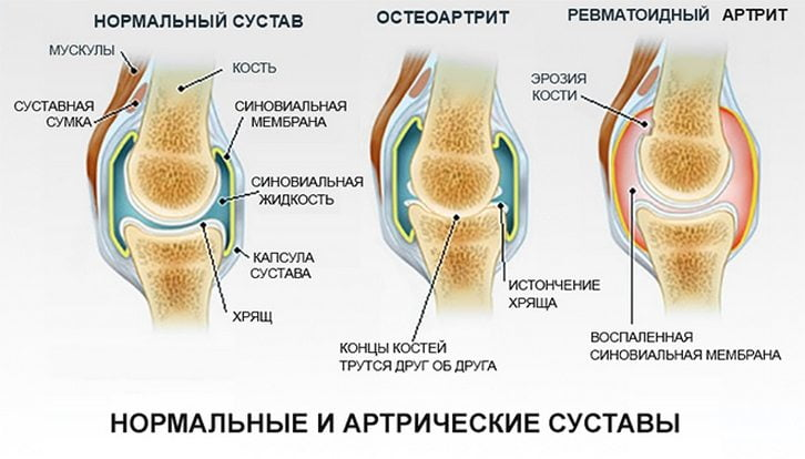 Артриты суставов