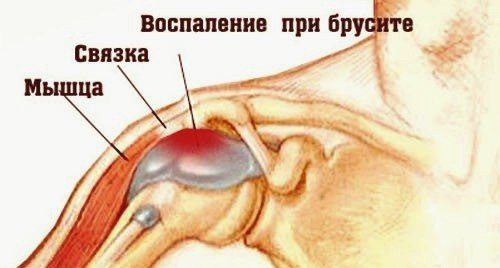 Изображение - Чем опасен бурсит плечевого сустава chto-takoe-bursit-plechevogo-sustava