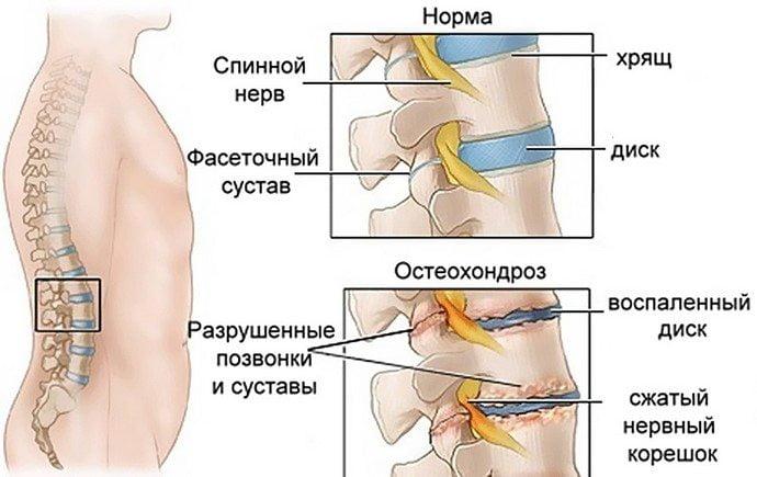 golovnaya-bol-pri-osteohondroze-shejnogo-otdela