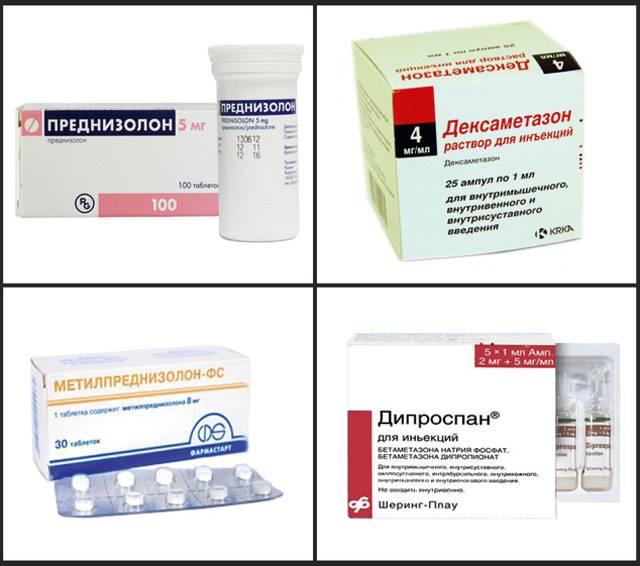 Ревматоидный артрит: симптомы и эффективное лечение