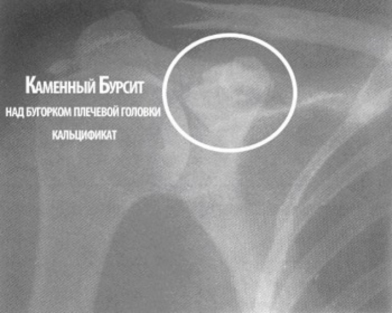 Изображение - Чем опасен бурсит плечевого сустава izvestkovyi-bursit-768x614