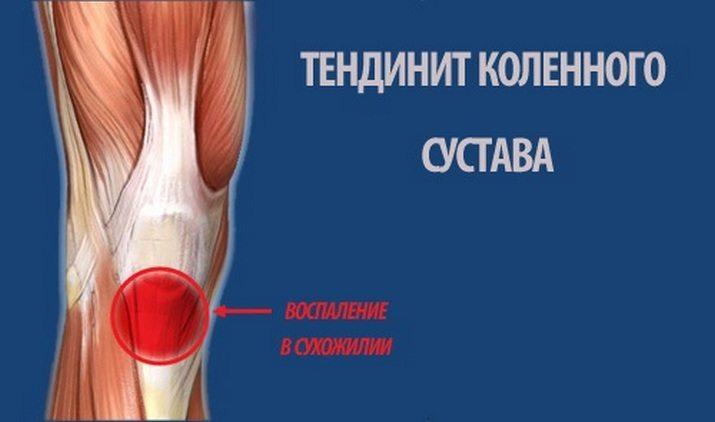 Тендинит колена