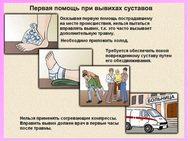 Изображение - Боли суставов ног признаки pervaja-pomoshh-pri-vyvihah