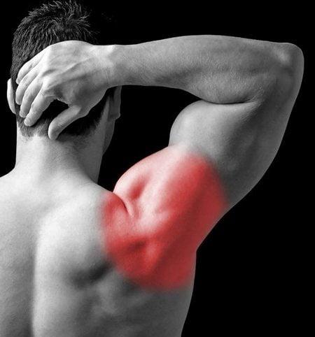Симптом плечелопаточного периартрита
