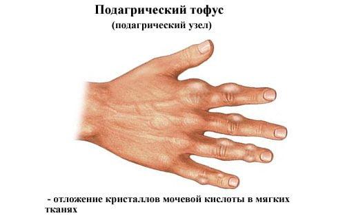 Изображение - Ноют суставы рук что делать podagra-chto-za-bolezn