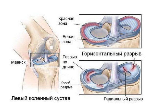 Повреждения мениска
