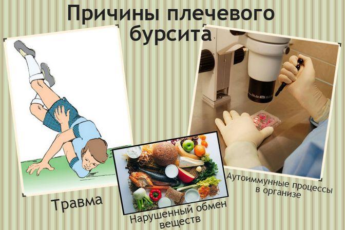 Причины бурсита плеча