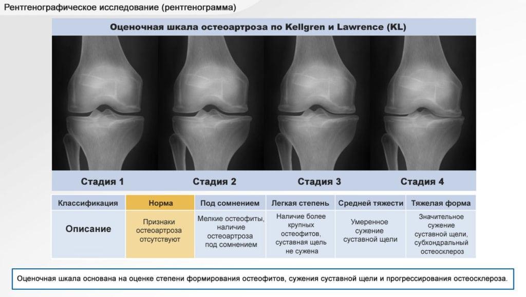 Гонартроз 2 стадии коленного сустава что это и лечение