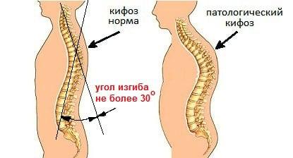 Болит спина в области позвоночника между лопатками – причины, лечение