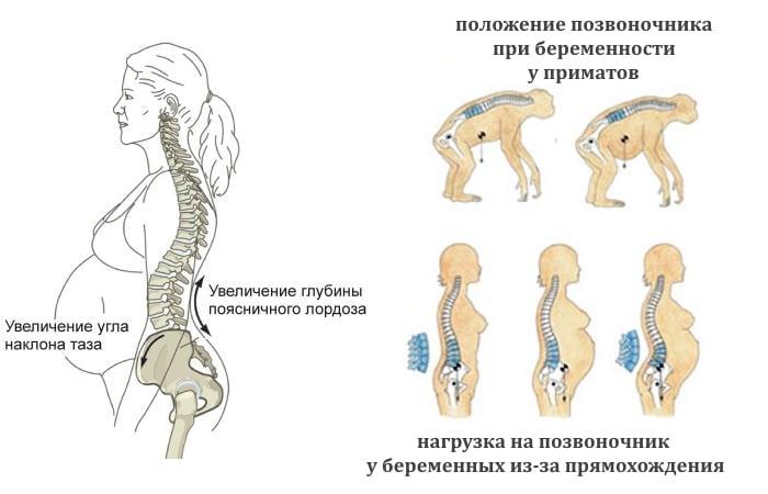 Беременная болит спина когда сижу