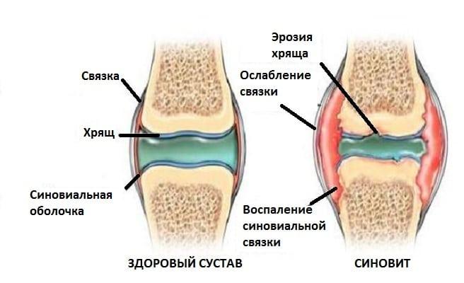 Синовит коленного сустава - 8 видов и эффективное лечение
