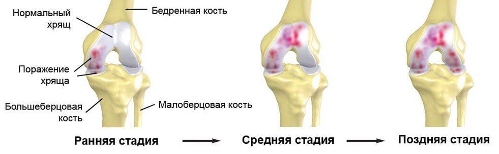 Стадии коленного артроза