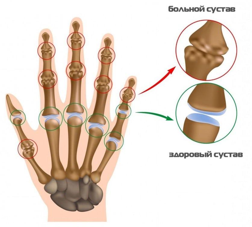 Изображение - Ноют суставы рук что делать bol-v-sustavah-ruk