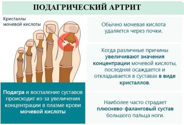 Изображение - Как проявляется артрит суставов chto-takoe-podagricheskiy-artrit