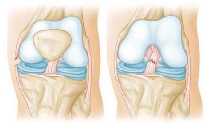 Изображение - Компресс из желатина на коленный сустав kak-pit-zhelatin-dlya-sustavov
