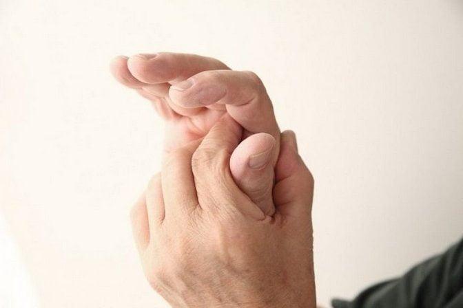 Подагра пальцев руки